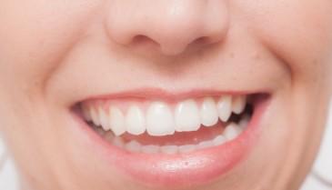 歯の黄ばみを自宅で除去して落とす方法 取りたい!消しゴムのように